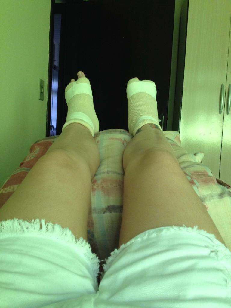 2º dia pós-cirurgia